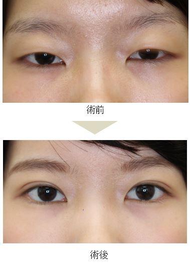 つり 目 を 治す 方法 腫れぼったい目を治す 6つの方法 - wikiHow
