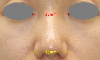 術後2m鼻翼