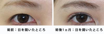 術前術後目と眉毛の距離