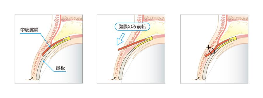 眼瞼下垂の手術の仕組み