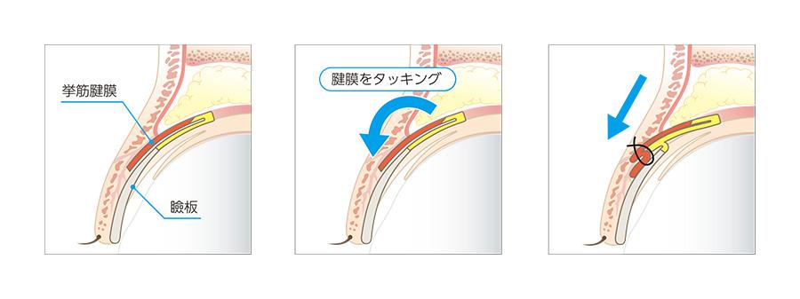 先天性の眼瞼下垂のように筋肉の力が弱く目が開きづらい方の場合