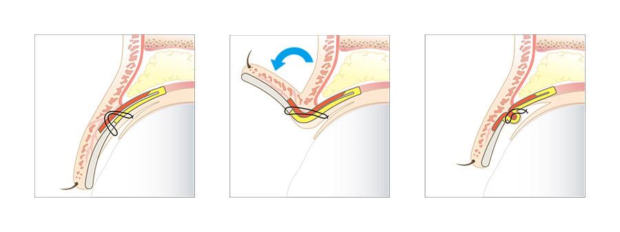 切らない眼瞼下垂の治療法